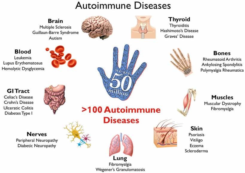 Common Food Sensitivities, autoimmune disease, types of autoimmune diseases, what is autoimmune disease