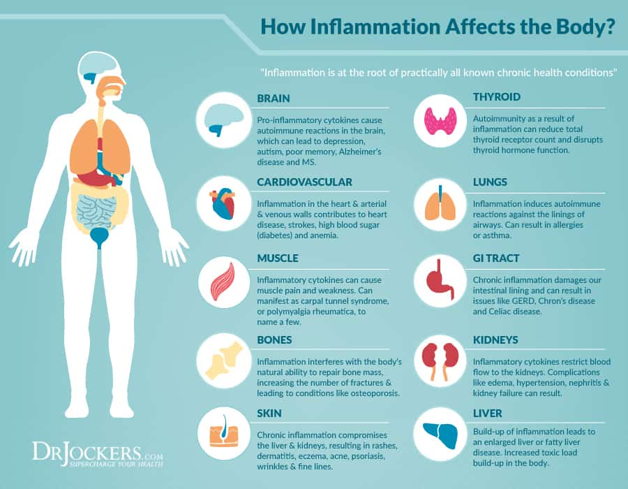 Chronic Inflammation, what is chronic inflammation, how does inflammation affect the body, inflammation in the body, foods that cause inflammation