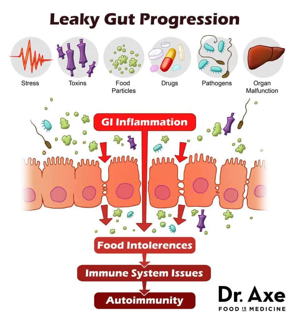 Common Food Sensitivities, what is leaky gut, what causes leaky gut, food intolerance symptoms, what is food intolerance